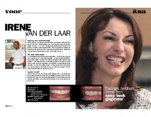 018-019_Voor&na_Irene van der Laar